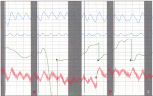 Polygraph Chart produced by our polygraph analysis examiners.
